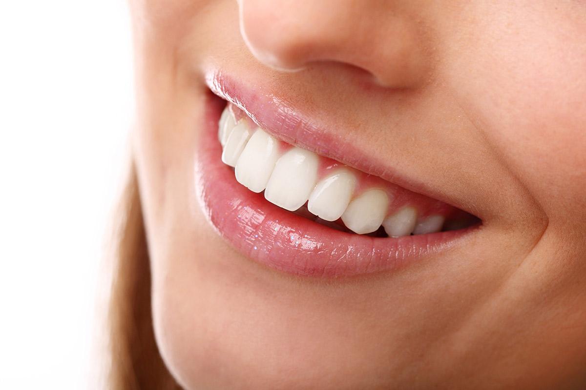 sonrisas-blancas