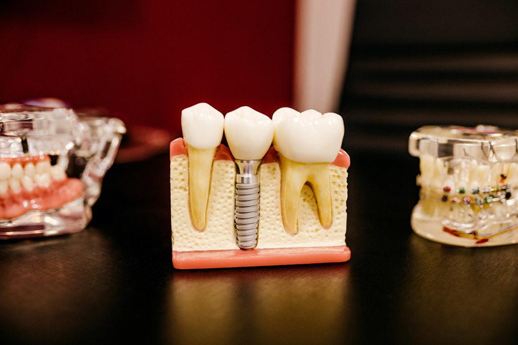 ausencia de piezas dentales